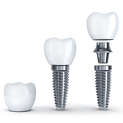 The three parts of a dental implant: post, abutment, and crown.