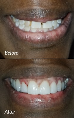 Before and after porcelain veneers photos from a patient of Smiles on the Hudson