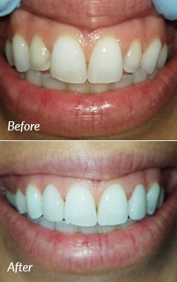 A Smiles on the Hudson patient's before and after porcelain veneers photos