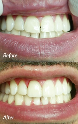 Before and after photos of a Smiles on the Hudson porcelain veneers patient